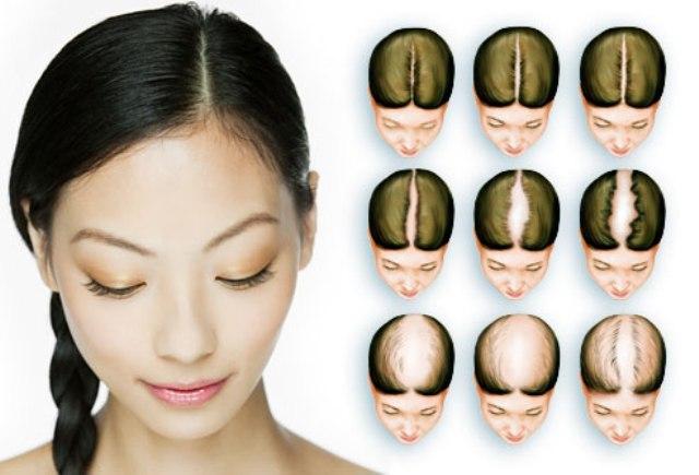 Pengertian Pola Rambut Rontok Pada Wanita (Female Pattern Hair Loss)