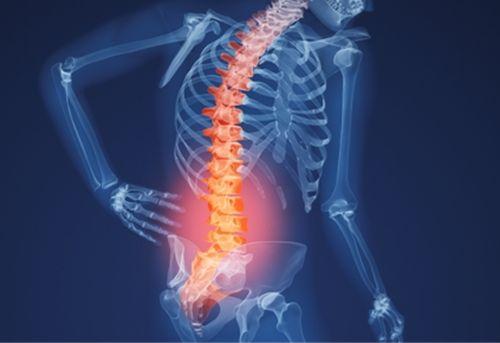 Cách chữa bệnh đau cột sống hiệu quả - hình 2