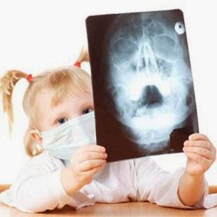 Ряд общих принципов лечения хронического синусита