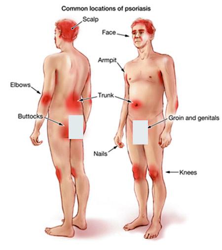 Obat salep psoriasis di apotik