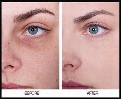 WIPE OFF THE DARK SPOTS ON YOUR FACE AFTER ONLY SECOND USE!