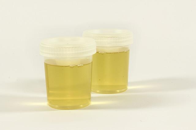 Exemplos de usos curiosos da urina pela ciência