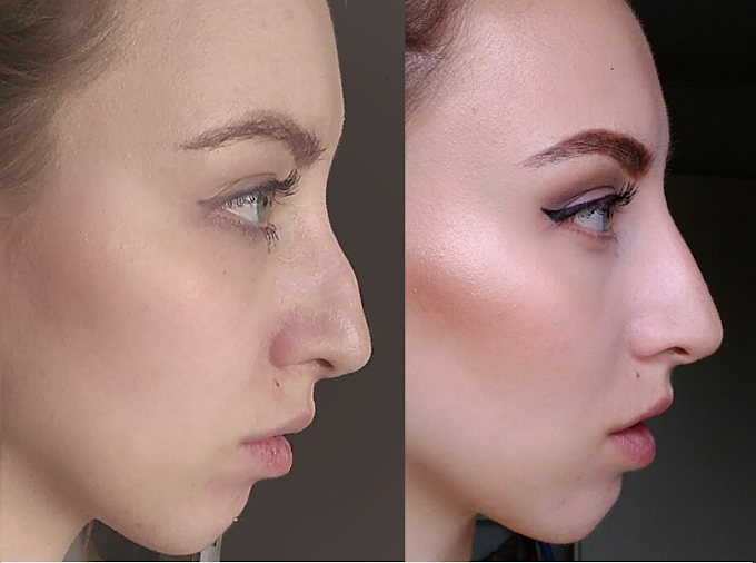How My Non Surgical Nose Job Changed My Life