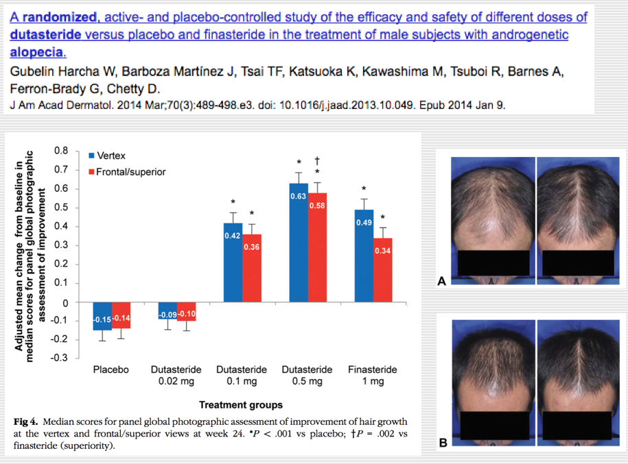 Dermatologia Madrid Nuevos Tratamientos En Alopecia Androgenica