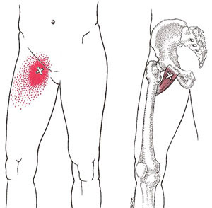 image-result-for-hip-groin-pain