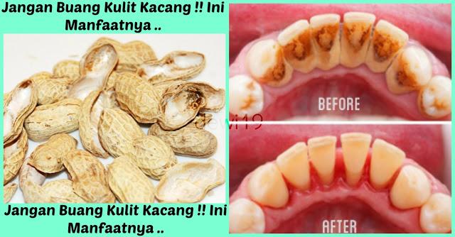 Terbukti !! Jangan Buang Kulit Kacang !! Ternyata Sangat Bermanfaat Untuk Membersihkan Plak Atau Karang Gigi Yang Membandel..
