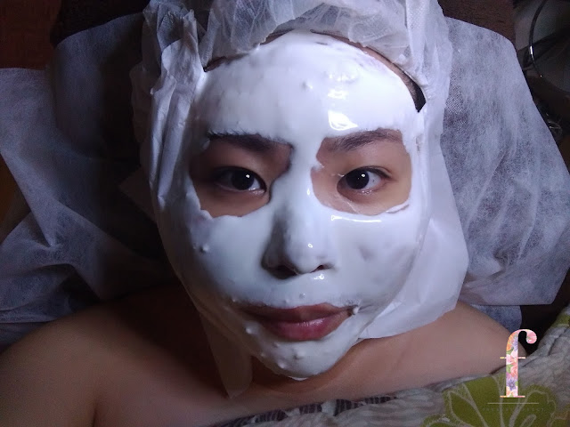 MIRACLE CLINIC TREATMENT: RENEW WHITE FACIAL FOR A BRIGHTEN SKIN for a brighten skin. Top beauty clinic in Jakarta for their hygiene, detailed and patience. My skin is brighten and more radiance after this renew white facial.