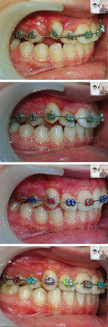 Вторая половина ортодонтического лечения ретинированного клыка