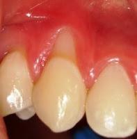 → 5 razões para não tentar clarear os dentes por conta própria em casa