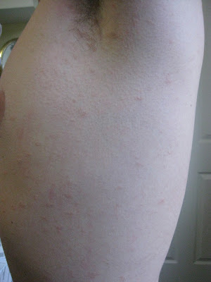 Pityriasis Rosea Herald Patch On Leg