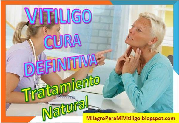 como-curar-el-vitiligo-tratamientos-caseros-remedios-naturales