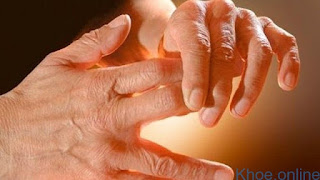 Những dấu hiệu cảnh báo khi bị tê tay