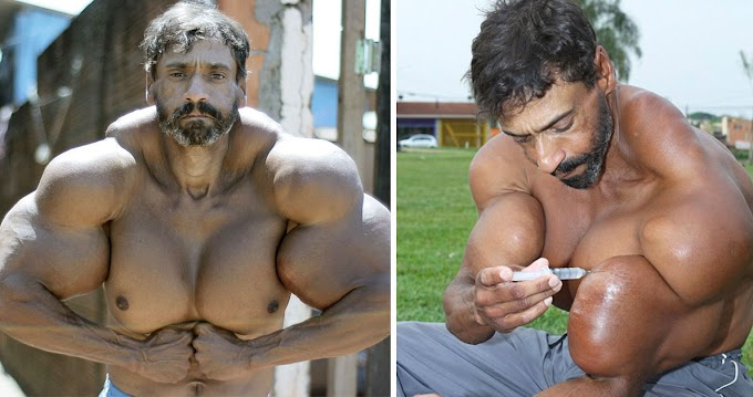 Synthol Freak Risks Losing His Life Because of Oil Injections Abuse