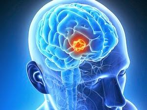 Penyebab penyakit kanker otak (tumor otak ganas ...