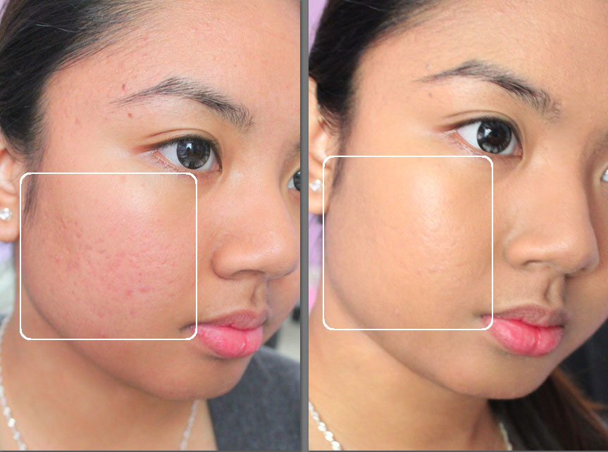 Image result for before and after foundation acne