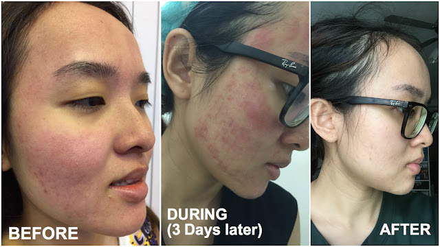 laser treatment to remove scars singapore