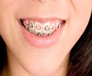 gigi atau dikenal breket sebagai perawatan  untuk estetis gigi yang dapat dipakaikan hampi Umur Berapa Anak Kecil Boleh Pakai Behel ?