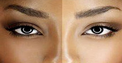 Qu'est-ce qui fonctionne vraiment pour éclaircir la peau