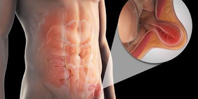 http://www.chennaigastroenterology.com/inguinal-hernia.html