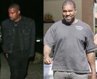 Kanye West Fat? Weight Gain 2017