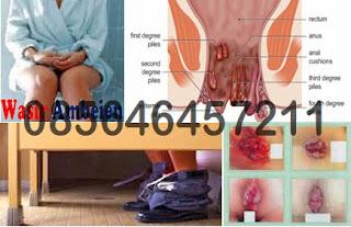 Obat Wasir (Hemoroid) Selain Wasiri