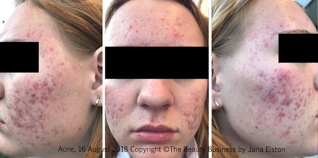 before and after photos Treating Inflammed Hormonal Acne and Acne Scarring by Jana Elston