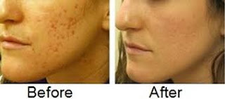 Remove Your acne Blemishes Naturally - Healthy t1ps
