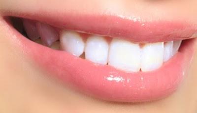 Tips Alami Membuat Gigi Tetap Putih Dan Bersih