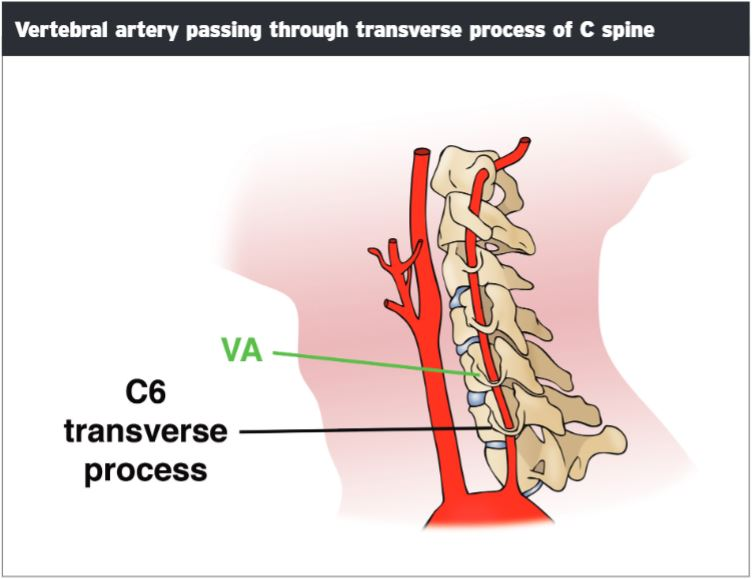 Transverse Process Fractures Of The Lumbar Spine