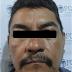 Aprehende FGE a sujeto por el delito de robo con violencia en agravio de migrante en Tapachula