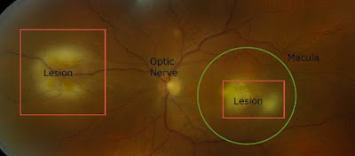 Retina with lesions