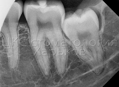 Рентген зуба мудрости до удаления