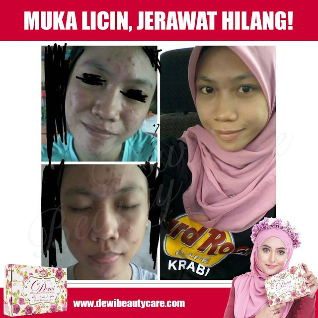 Testimoni Dewi Beauty Care