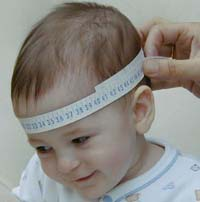 Penanganan Hidrosefalus Pada Bayi