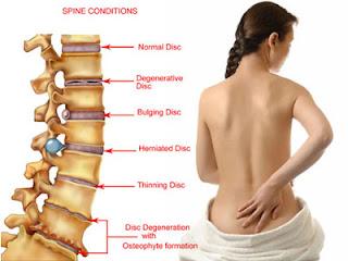 Image result for spinal problems