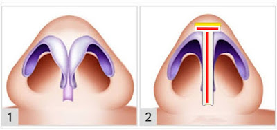 Nose tip lifting in İstanbul - Nose tip plasty operation in İstanbul - Tip plasty in İstanbul - Nose tip reshaping in İstanbul - Nose tip surgery in Turkey - Open technique tip plasty operation in İstanbul - Burun ucu estetiği Bakırköy - Burun ucu küçültme - Burun ucu daraltma