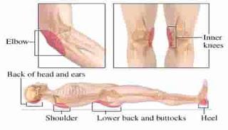 penyebab luka tempat tidur/ luka Bed