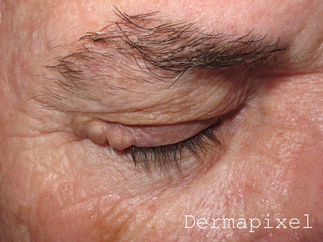 Dermapixel: Unos quistes en los párpados
