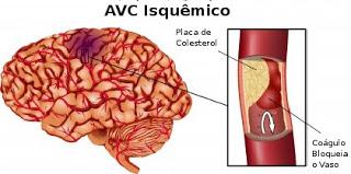 A sanguíneo nos cerebrais sintomas devido coágulo paralisia