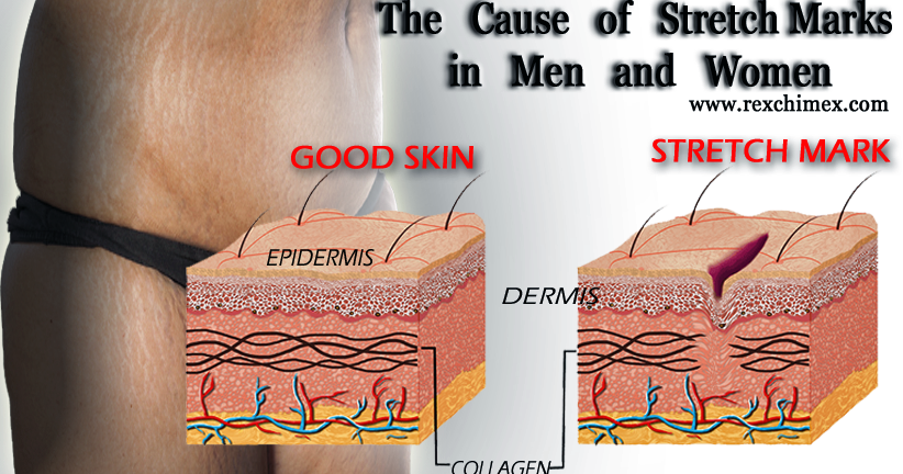 The Cause Of Stretch Marks In Men And Women Rex Chimex Blog