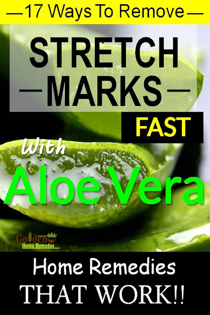 Aloe Vera for stretch marks, how to lighten stretch marks fast with Aloe Vera, how to get rid of stretch marks, home remedies for stretch marks, remove stretch marks, stretch marks treatment,