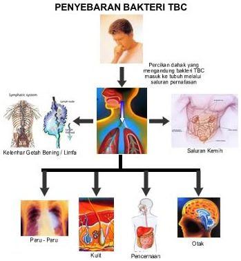 Obat TBC Paru ( Flek Paru Paru ) Tradisional Terampuh dan Termanjur