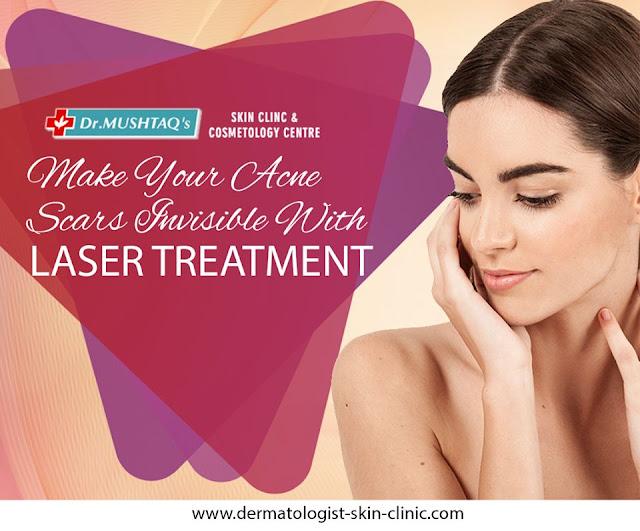 Acne Scars Removal in Kerala
