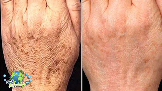 Esas eran mis manos 15 días antes de aplicar este remedio casero. Mi cara también quedó sin manchas