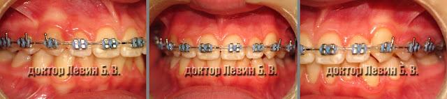 Три фото зубов характеризующие прикус пациента на 10 месяце лечения