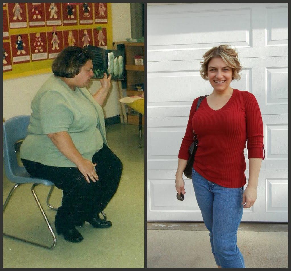 Major Weight Loss Before And After Surgery
