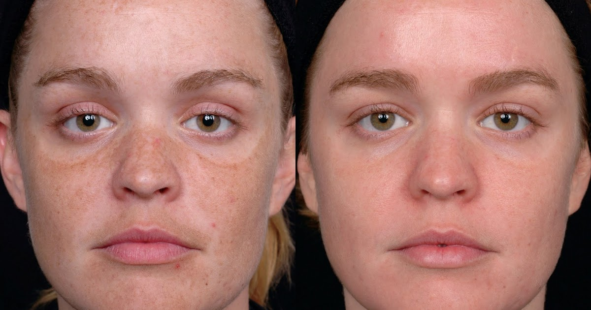 overuse of topical steroid cream