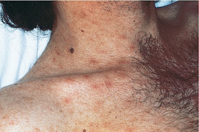 Primary HIV infection, with poorly demarcated erythematous macules and papules of the neck and upper trunk
