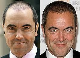ünlülerin saç ekimi öncesi sonrası fotoğrafları