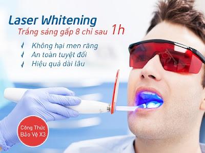 các phương pháp tẩy trắng răng hiện nay -3